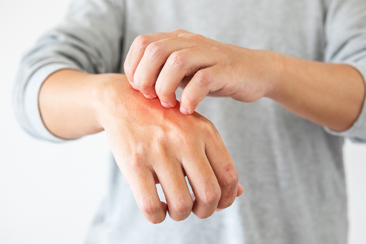 Person with psoriasis