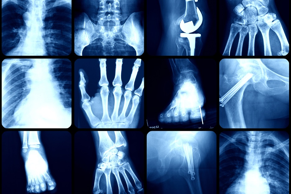 Collage of body part X rays